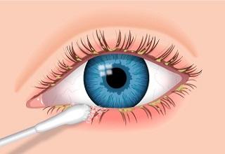 blepharitis-eye-swab-320x220
